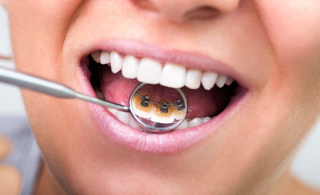 types of braces - lingual braces