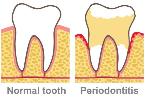 General Dentistry & Periodontal Disease