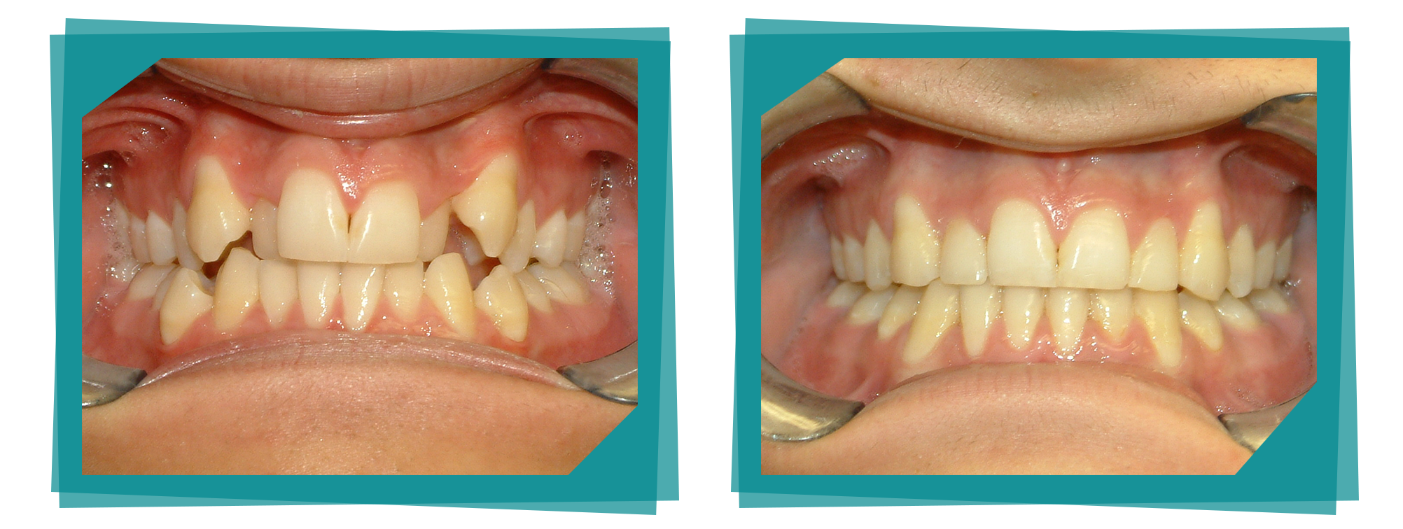 Before and after at the Parkcrest Dental Group.