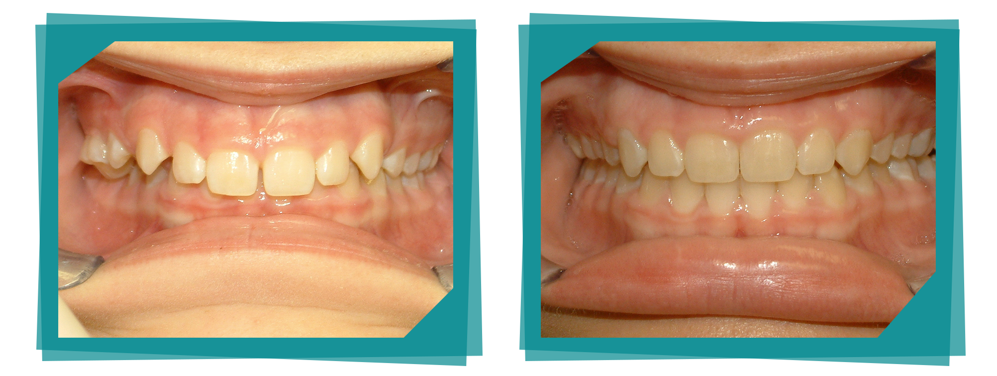 Parkcrest Dental Group before and after picture.