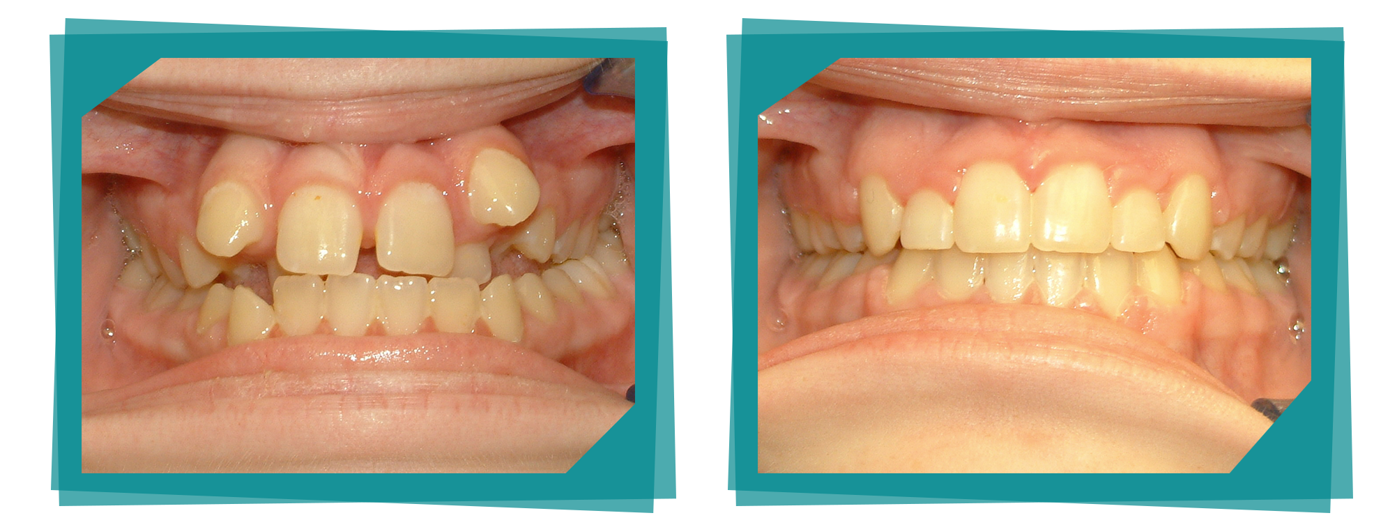 Teeth before and after cosmetic dentistry.