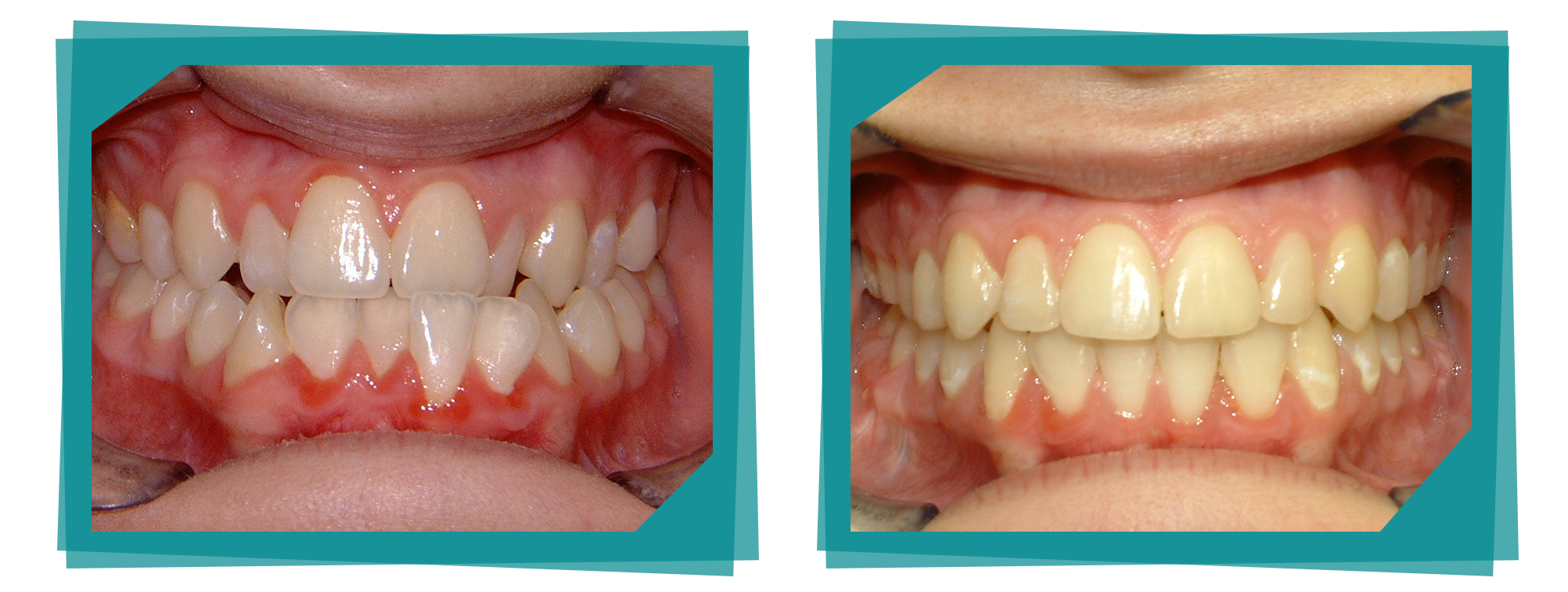 Teeth whitening before and after from Parkcrest Dental Group.