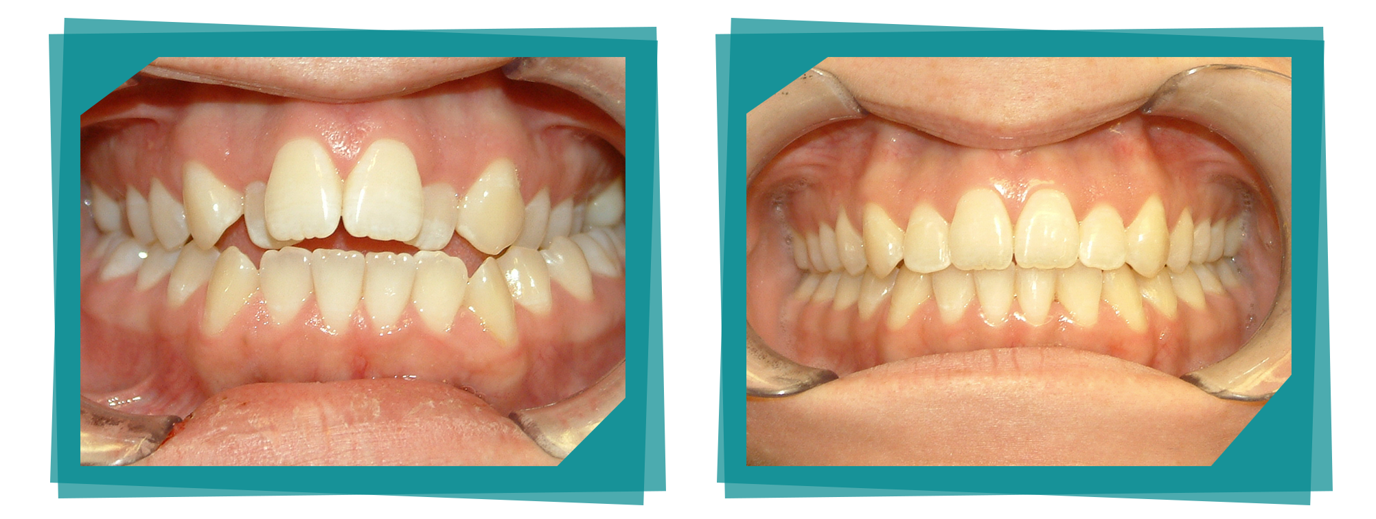 Parkcrest Dental Group teeth whitening before and after.