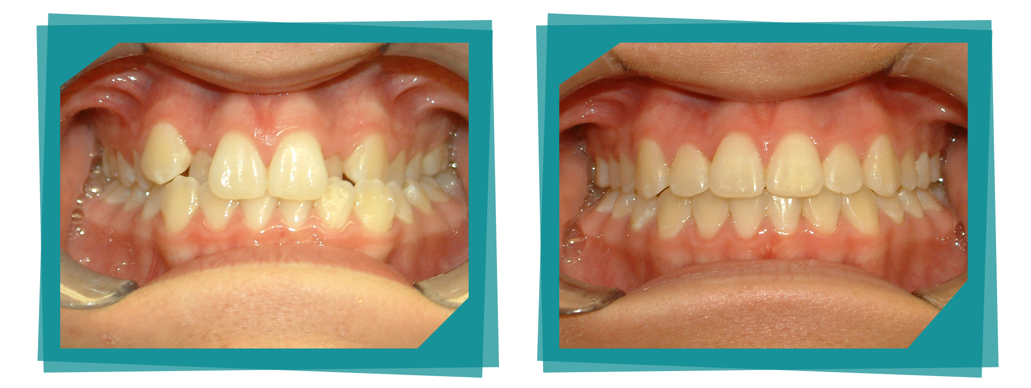 Parkcrest Dental Group before and after teeth image.
