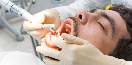 Sedation dentistry procedure.