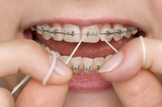 Careful flossing on braces - orthodontics.