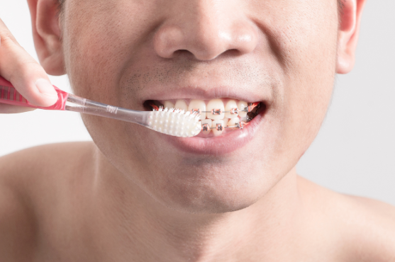 Brushing teeth with braces attached - orthodontics.
