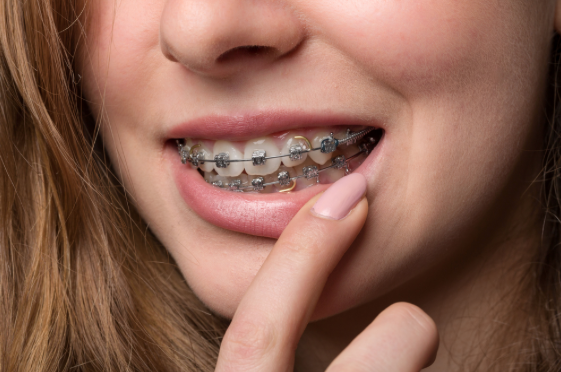 Young woman showing braces on teeth - orthodontics.