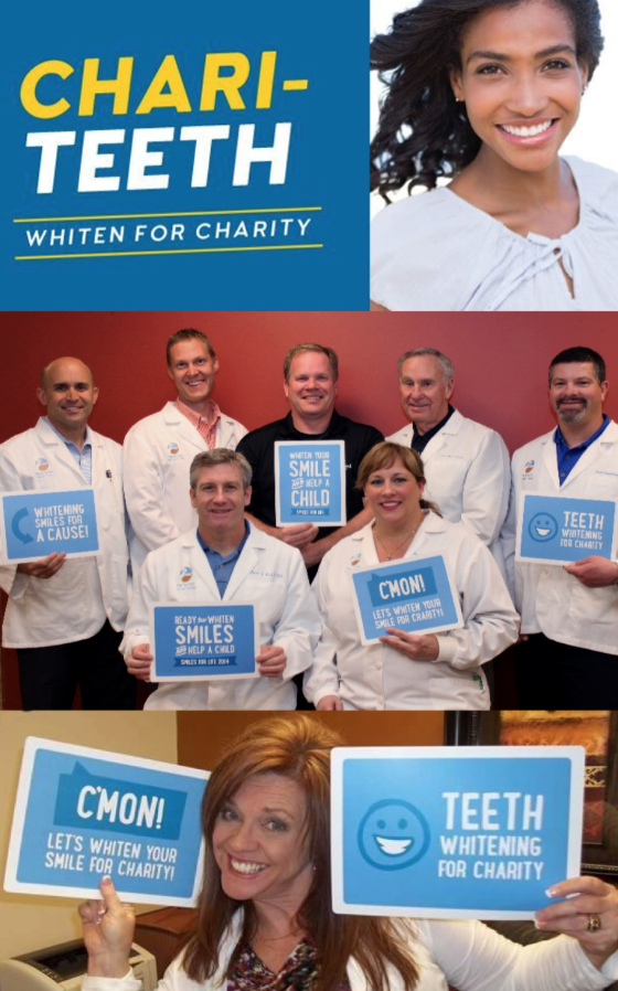 Teeth whitening for charity.