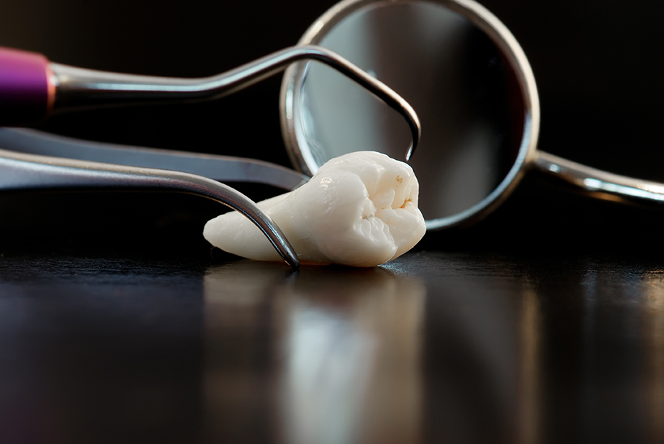 wisdom teeth removal and dental instruments