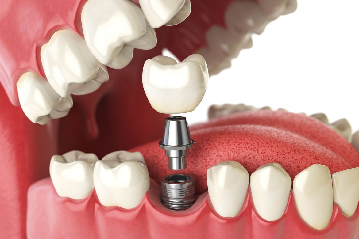 Image result for Where Can You Get Dental Implants?
