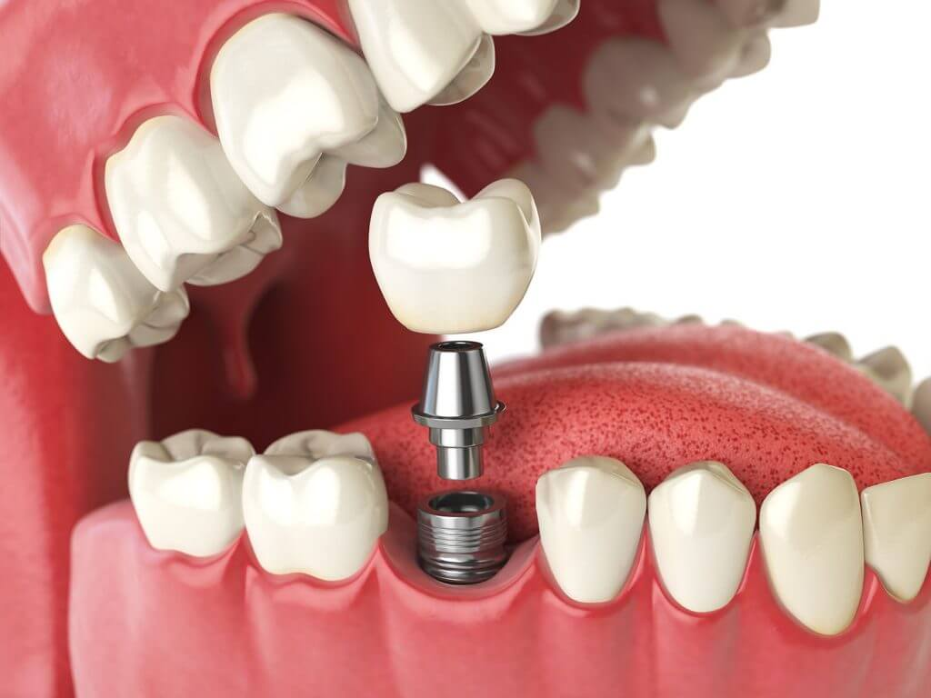 The Three Main Components of a Dental Implant