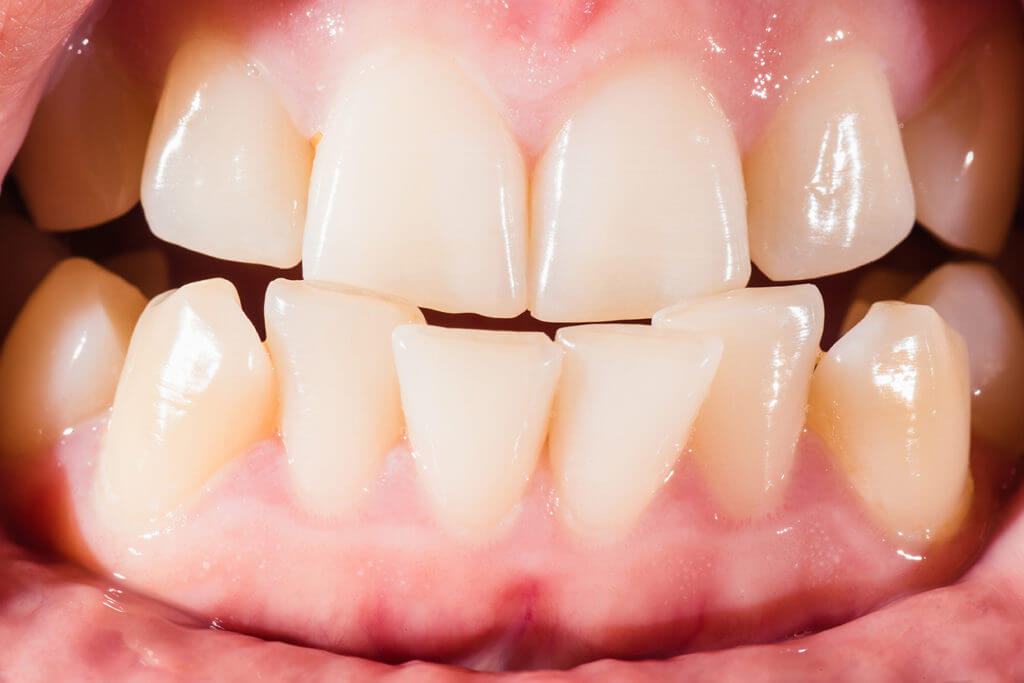 A Woman with Malocclusion Visits Her Dentist in Springfield, MO