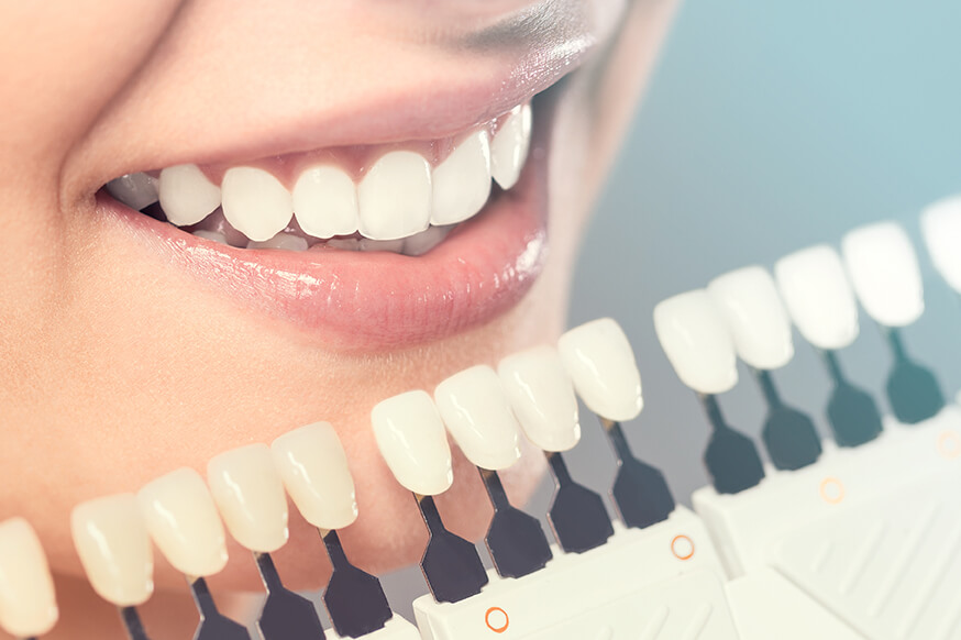 Veneers Are a Popular Cosmetic Dentistry Procedure