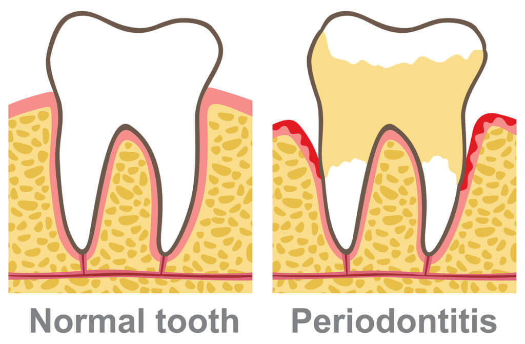 Your General Dentistry Office Can Diagnose Periodontal Disease