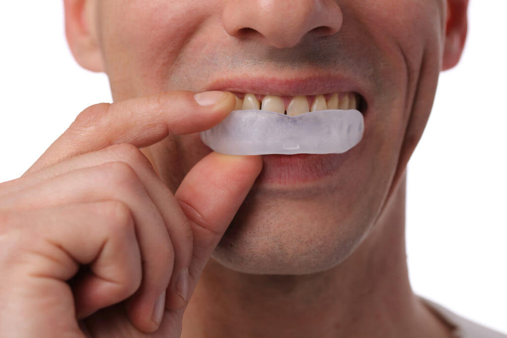 Man applying teeth whitening gel