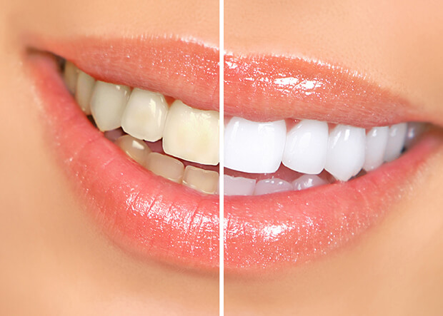 Parkcrest Dental Group Client Before and After Photo of Teeth Whitening