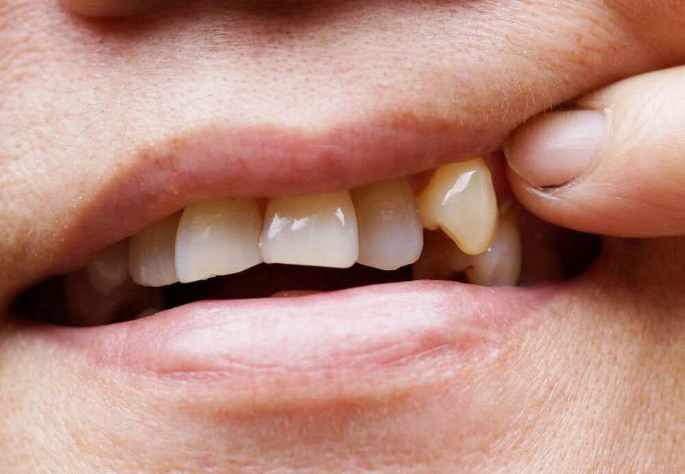 General dentistry advice for a chipped tooth