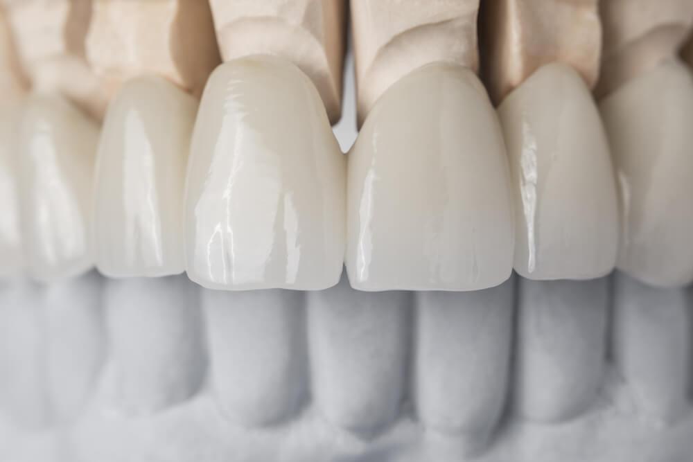 Cosmetic dentistry and how veneers work