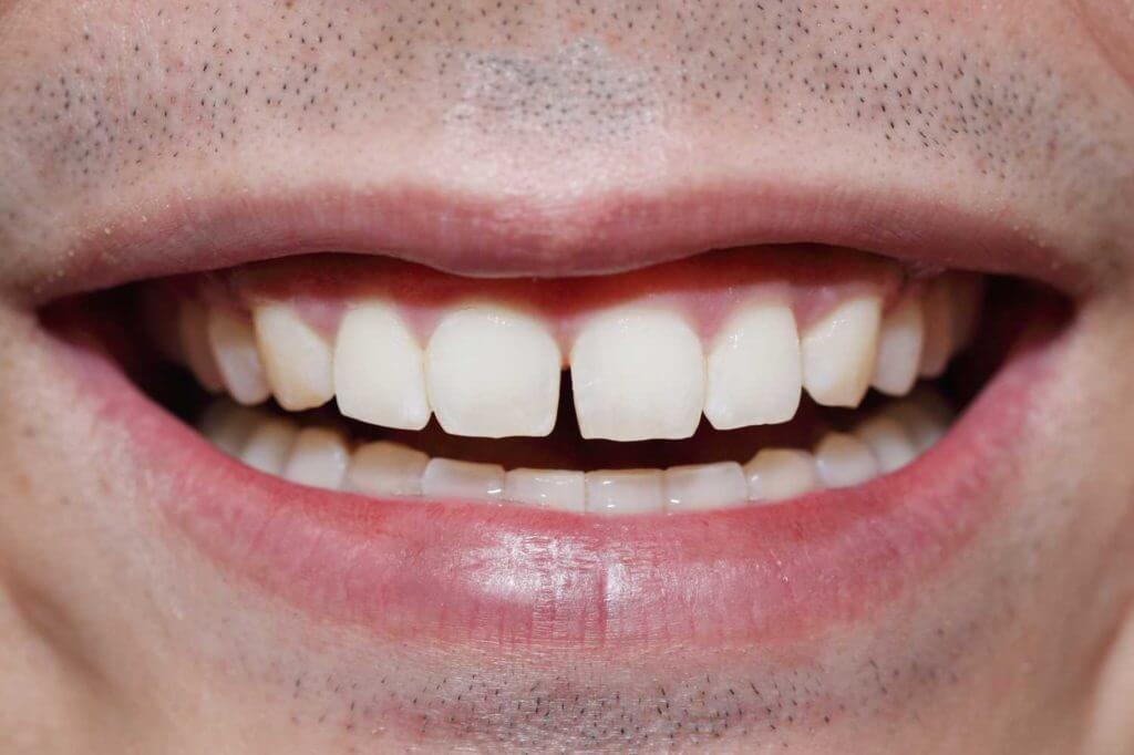 Cosmetic dentistry and tooth bonding.