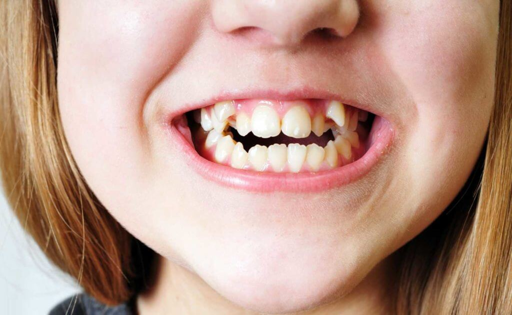 Orthodontic dentistry and unusual causes of misalignment.