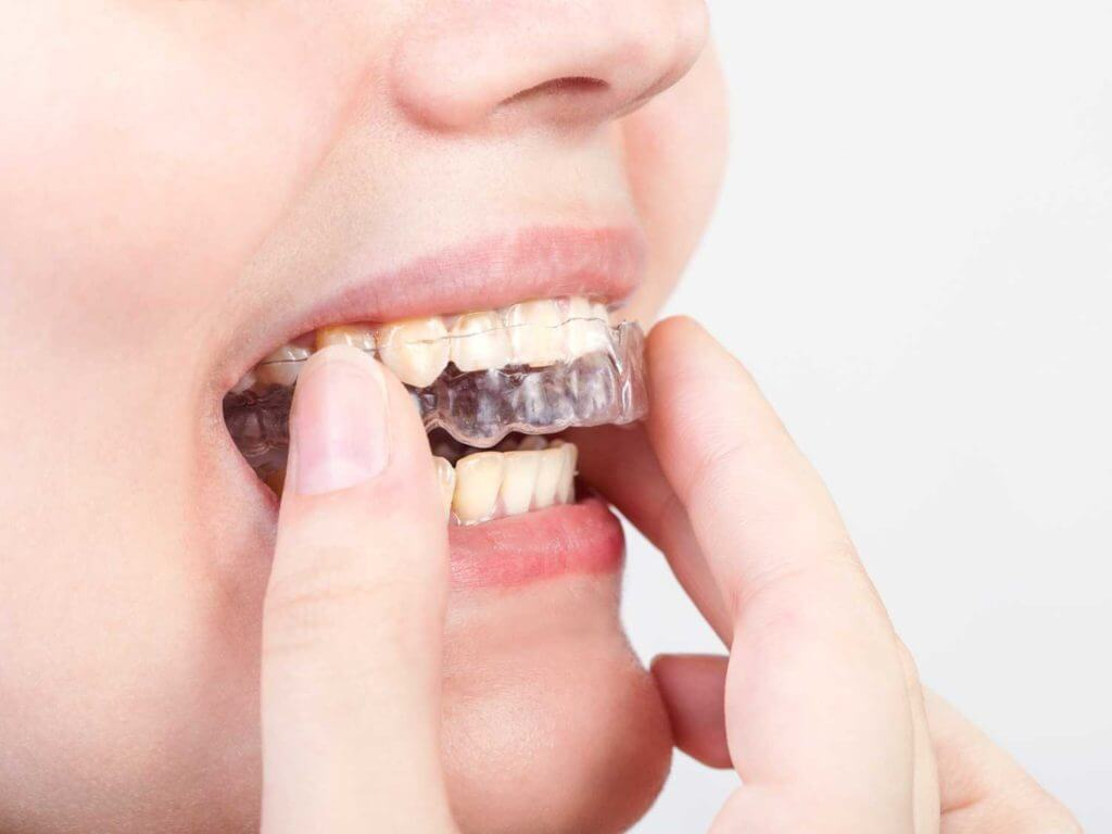 Orthodontic dentistry and issues with an overbite.
