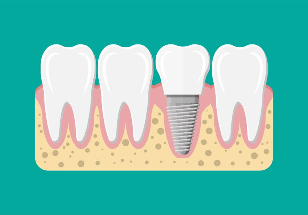 Drawing of dental implants on a green background