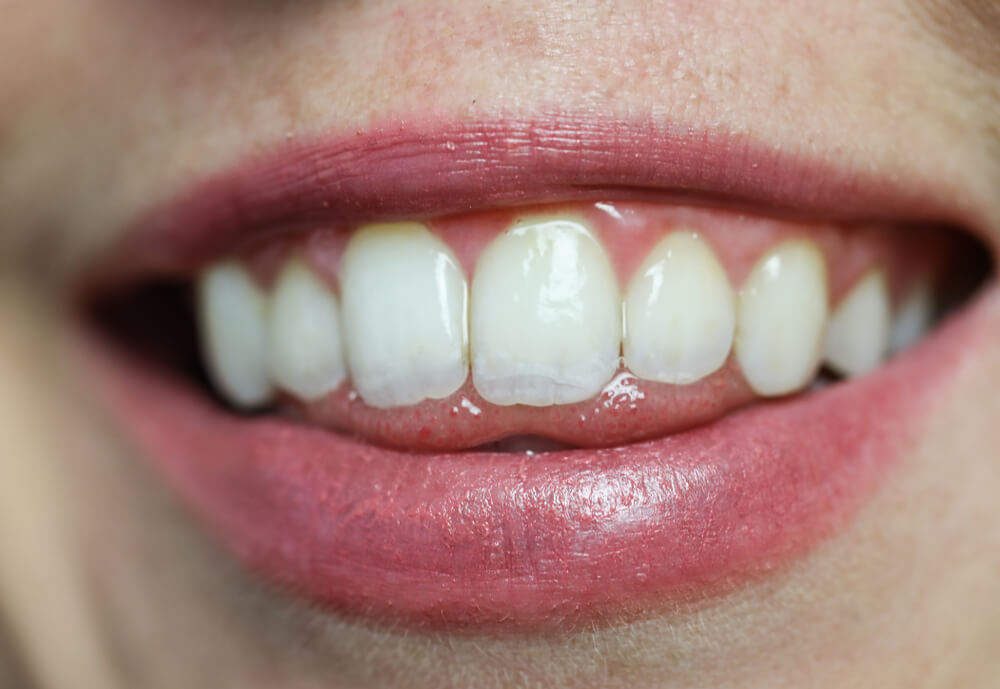 Teeth whitening - white teeth.