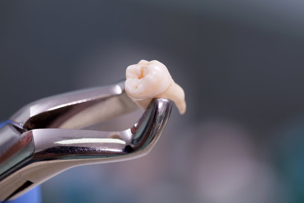 Wisdom teeth removal - picture of a wisdom tooth