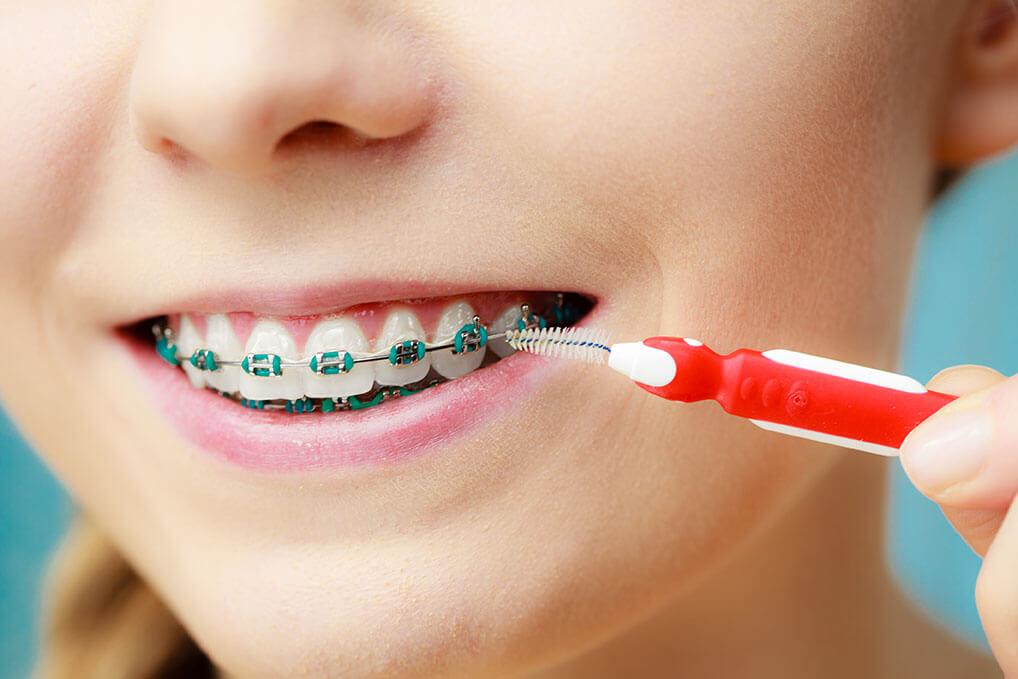 Smile Braces Interdental Brush