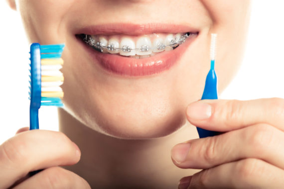 Dr. Harrison: Brushing Your Teeth With Braces