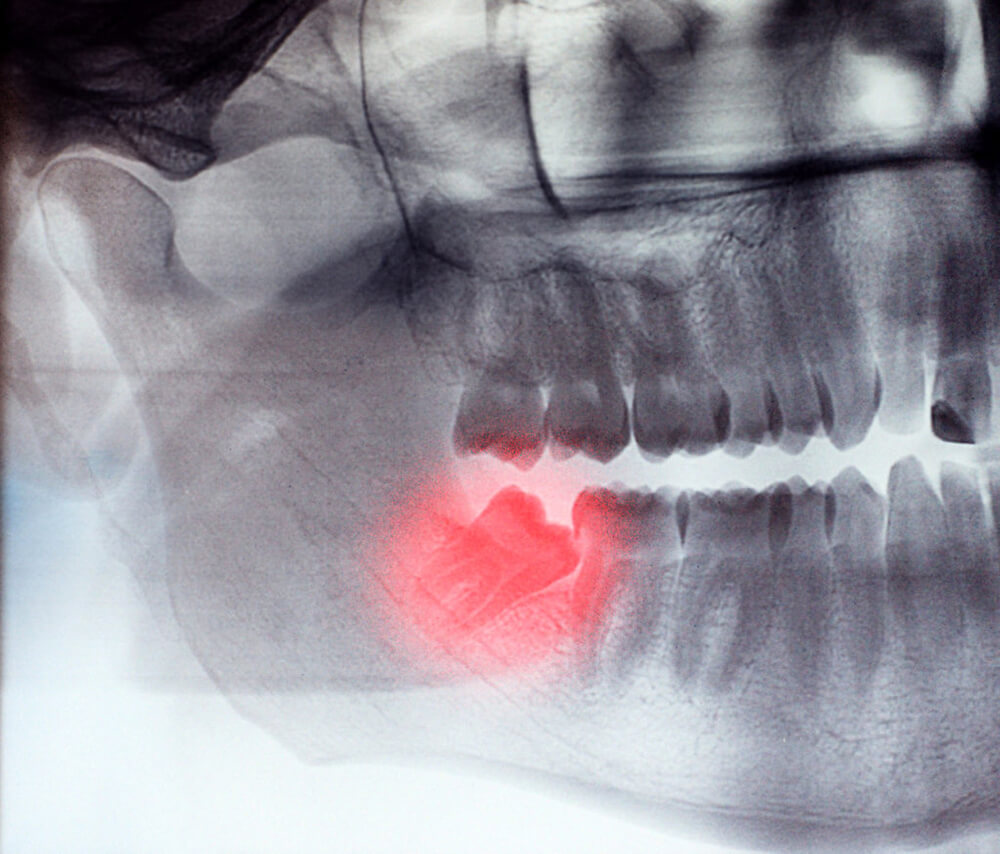 X-Ray of wisdom teeth removal
