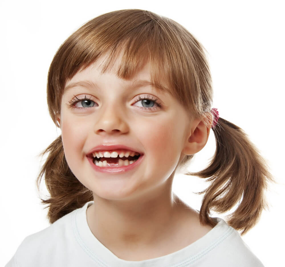 Little girl with missing teeth