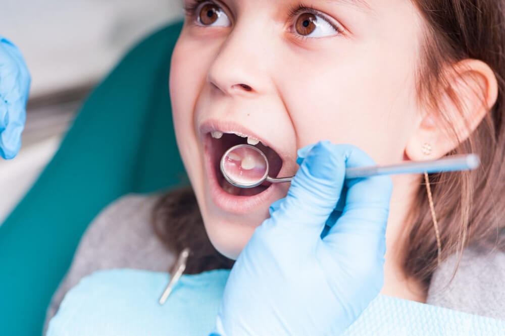 A-child's-teeth-are-examined-by-a-dentist.-