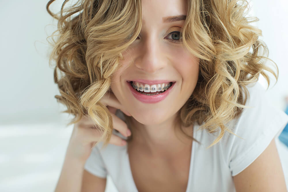 Young woman with braces smiling at the camera