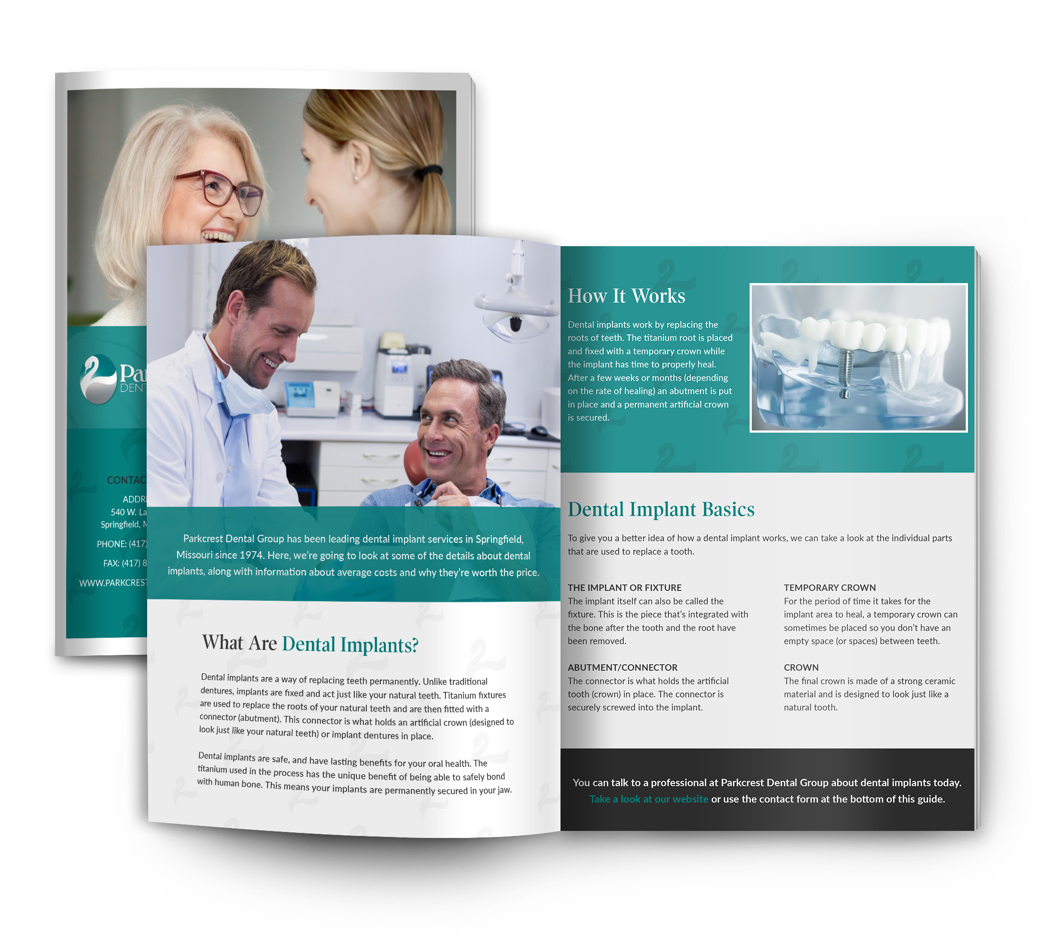 Parkcrest dental implant guide