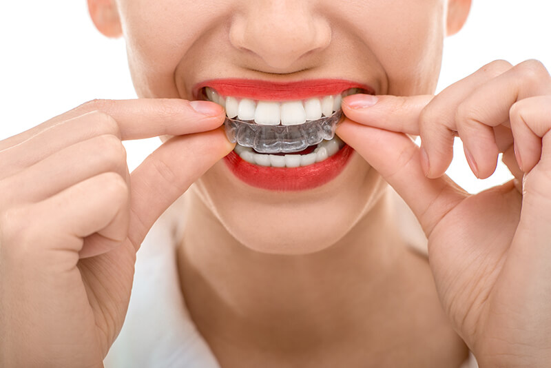 Smiling woman applying Invisalign - Parkcrest Dental Group.