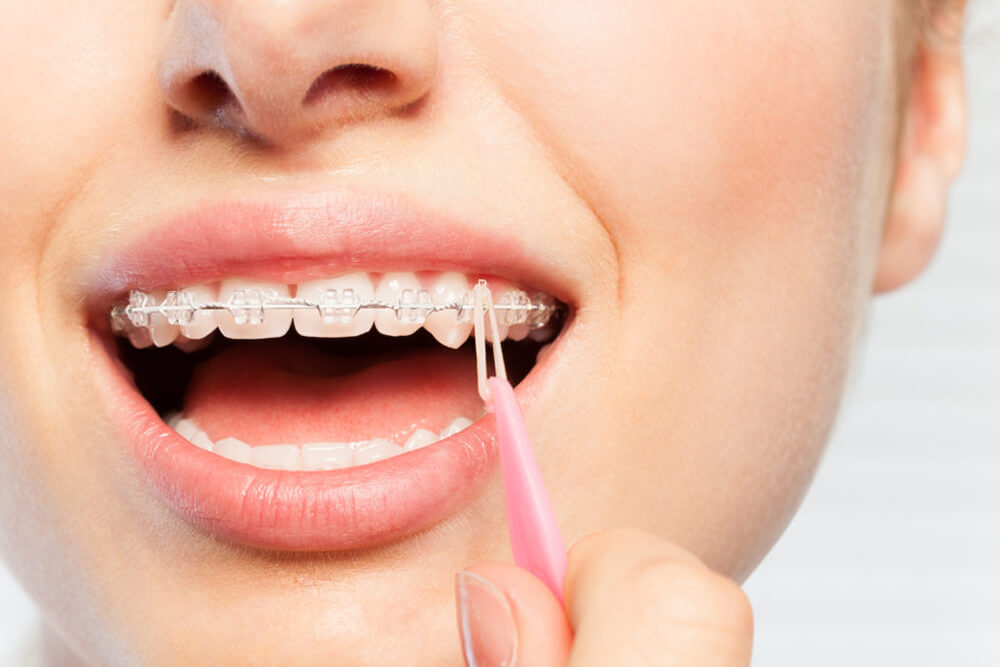 Teenage girl puts rubber bands on her braces