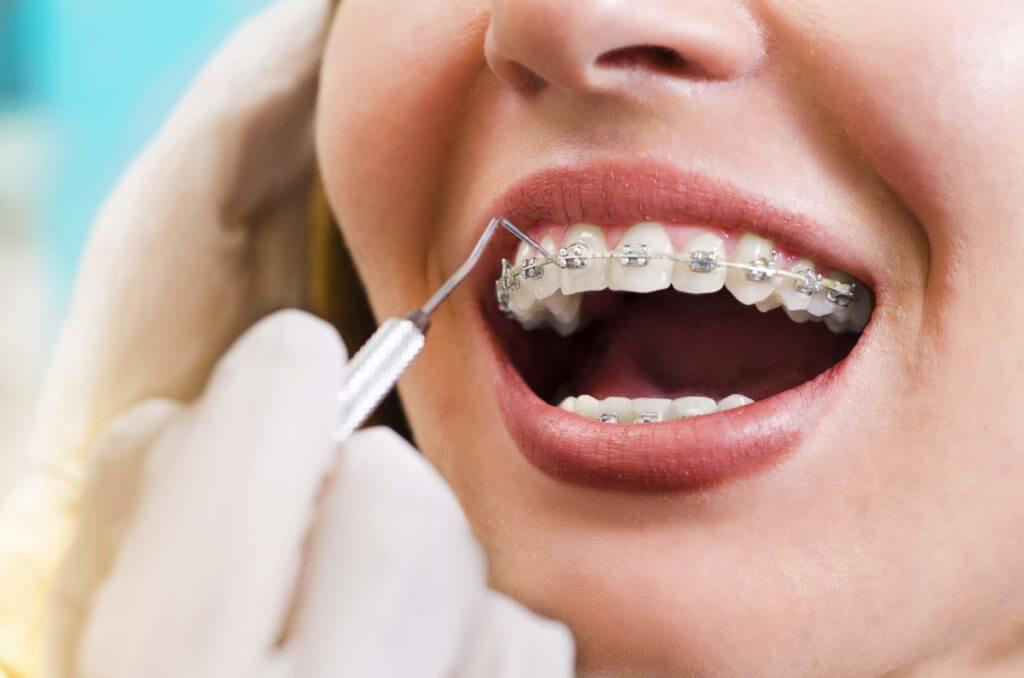 Adult Getting Orthodontics Work With Parkcrest Dental
