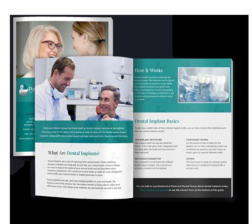 Dental Implant Guide