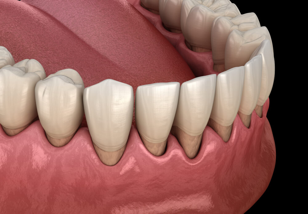 ○ 3D model of gum recession process