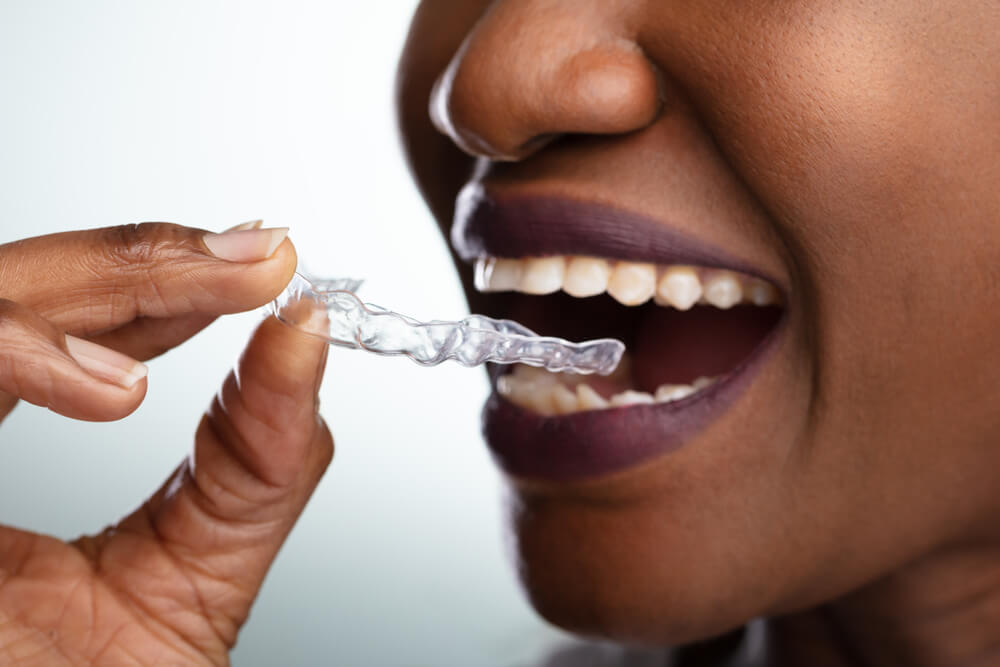 Close-up of a woman putting Invisalign onto her teeth