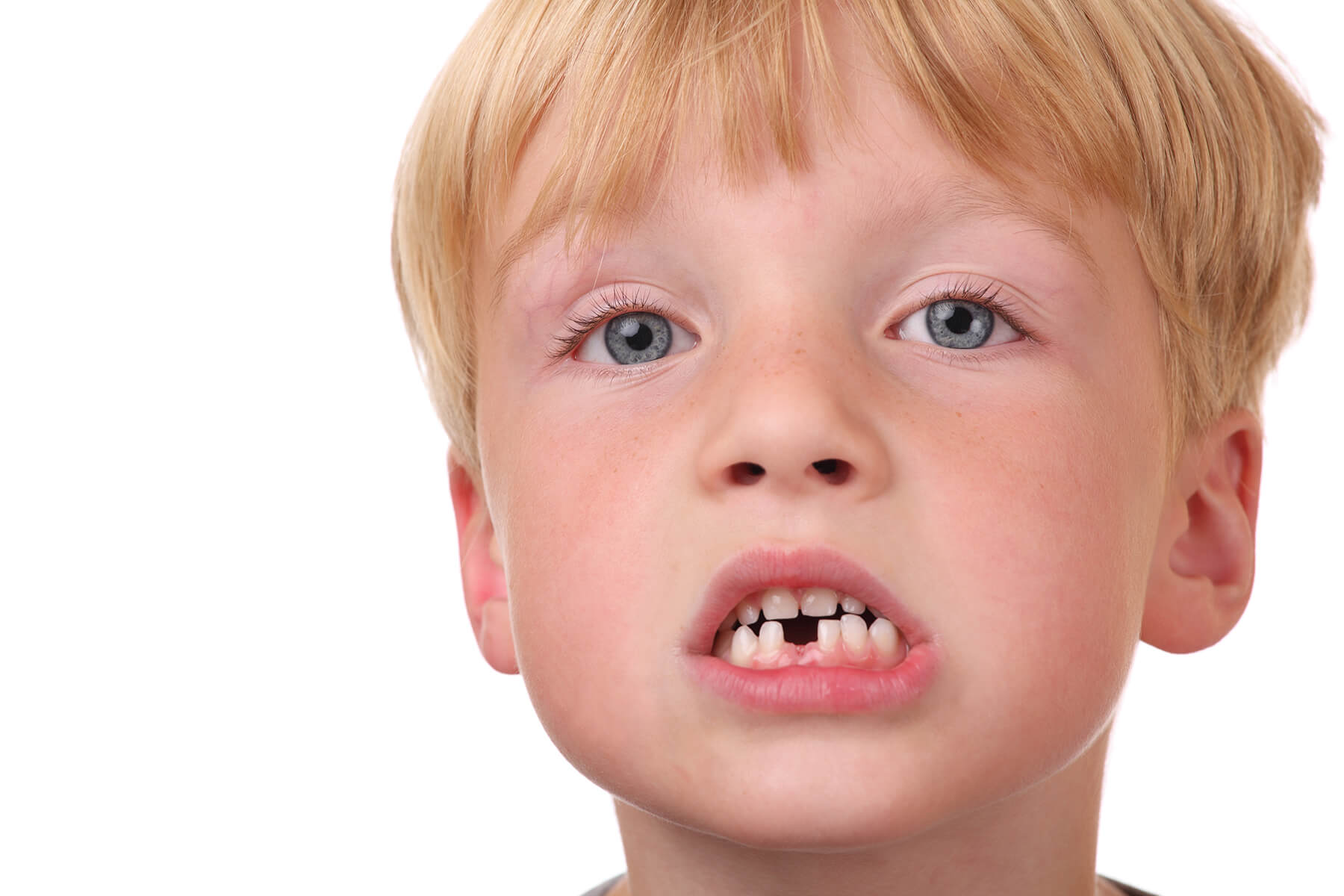 Little boy looking sad with missing teeth