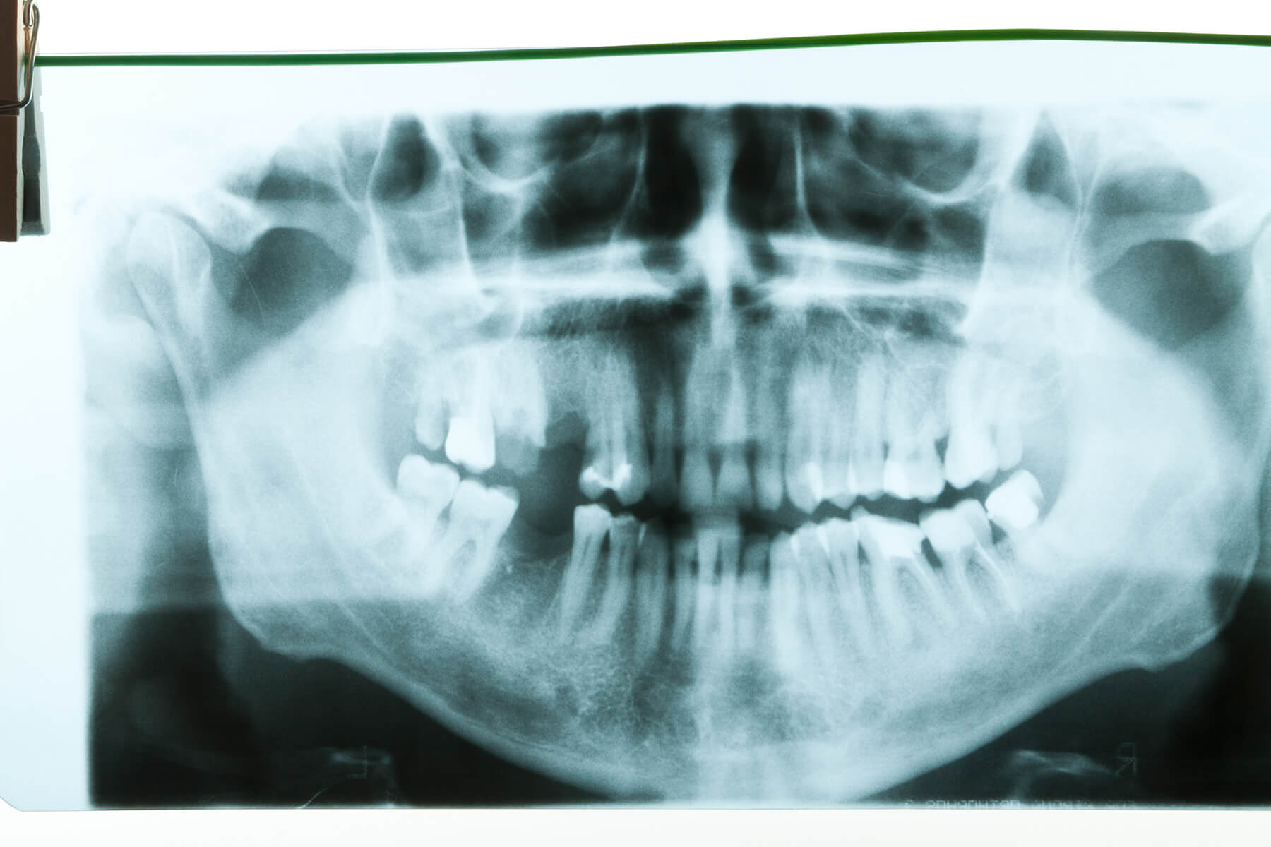 Panoramic dental x-ray of a patient's teeth