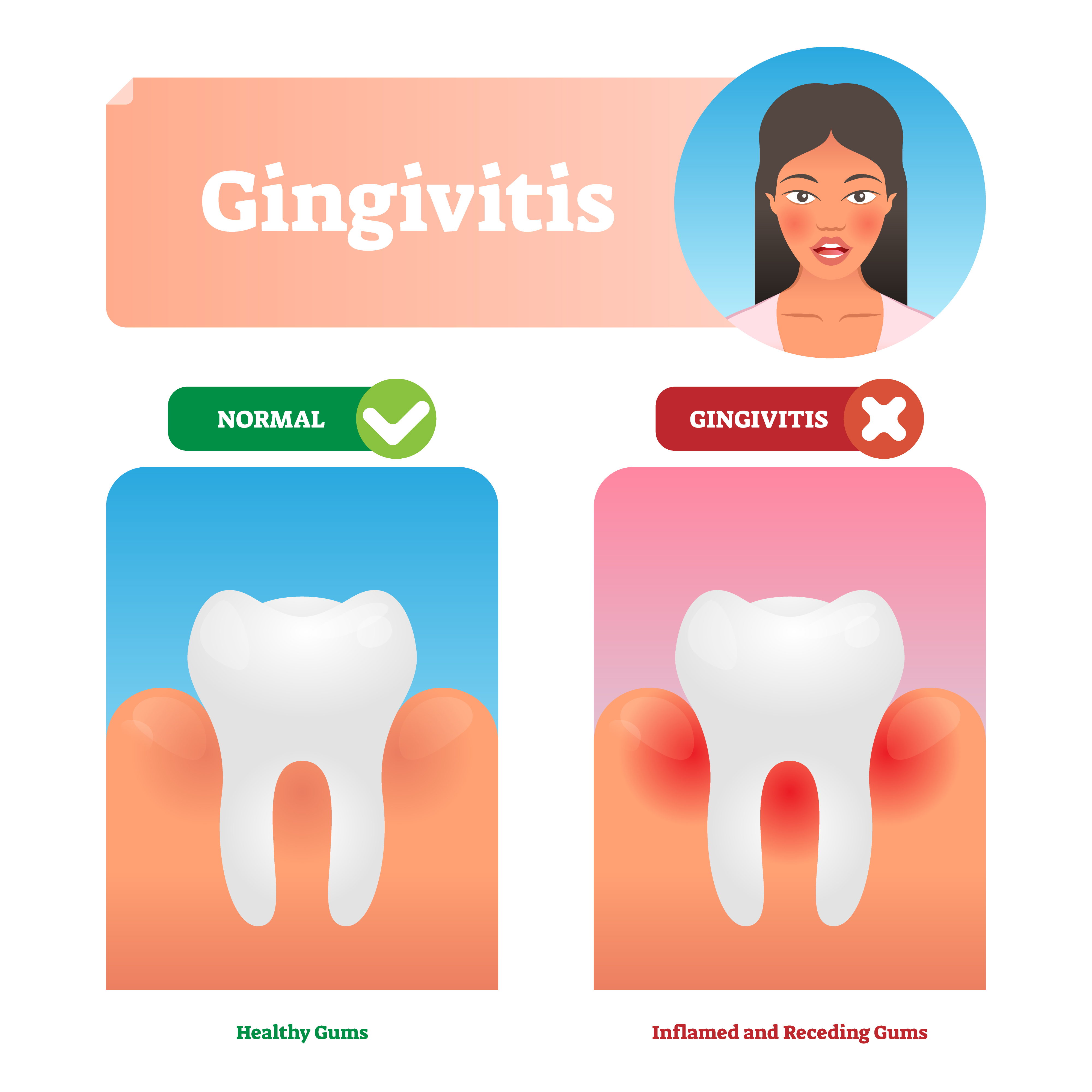 vector of healthy gums and inflamed gums