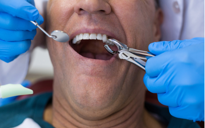 Man having tooth extracted at his dentist's office