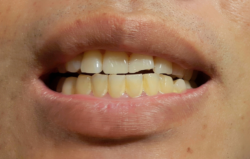 Closeup of man's teeth with plaque on them