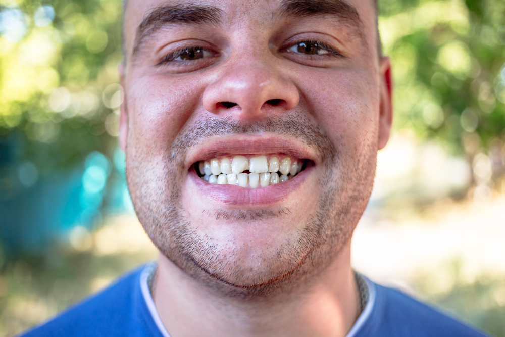 Young man smiling with chipped front tooth