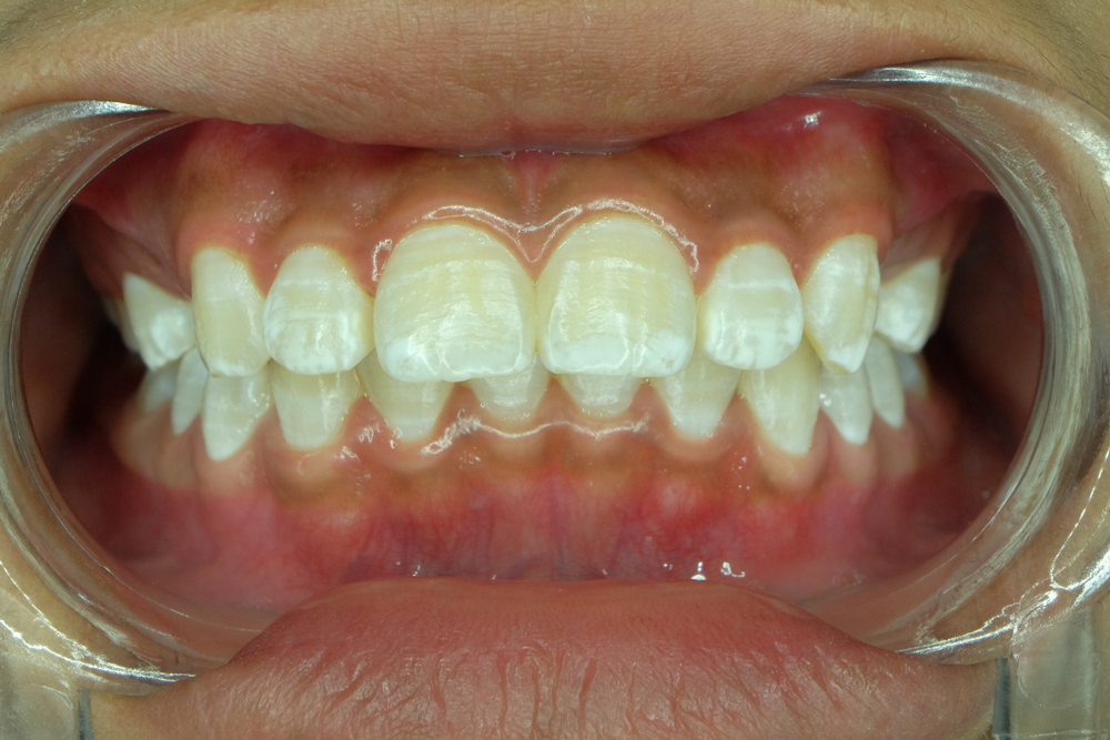 white spots on a child's teeth for fluorosis