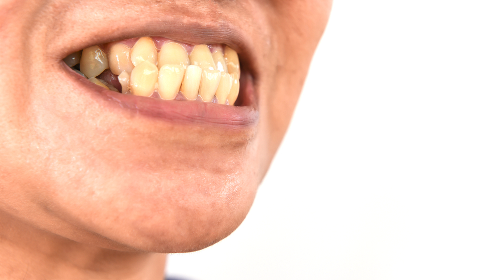 Middle-Aged Man with an Underbite